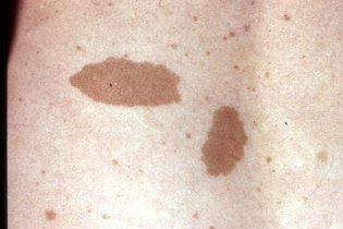 Manchas marrons da neurofibromatose
