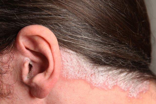 Tratamentos para Psoríase no couro cabeludo