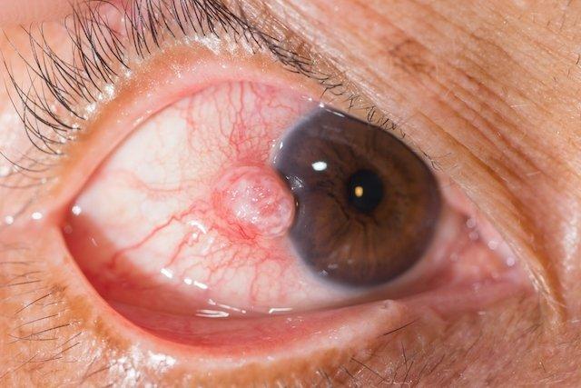 Como tratar a Esclerite para evitar a Catarata