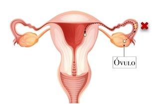 Infertilidade causada pela obstrução das trompas