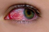 Problemas nos olhos
