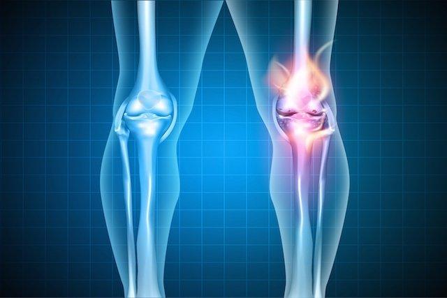 Dor na o no joelho ajuda diclofenaco