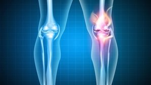 Possible causes of knee pain and what to do