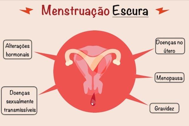 Menstruação escura: saiba as causas e quando se preocupar