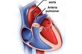 Coração depois da cirurgia