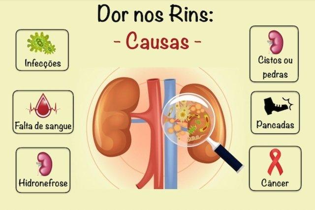 Principais causas e tratamentos para dor nos rins