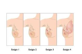 Remoção da mama segundo o estágio