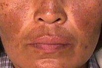 Saiba o que é e como tratar o Melasma - Manchas escuras no rosto