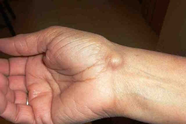 Caroço na pele pode ser Cisto Sebáceo