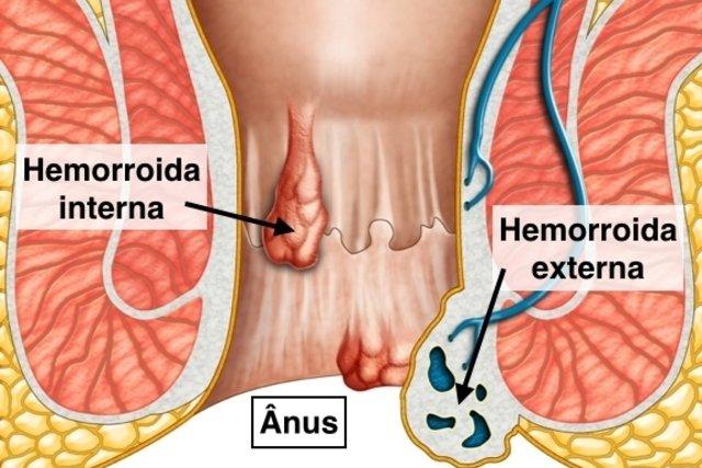 5 principais sintomas de hemorroida