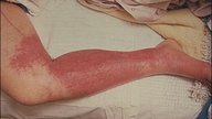 What is a cellulitis infection and how to identify it