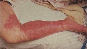 Qué es la celulitis infecciosa y cómo identificar