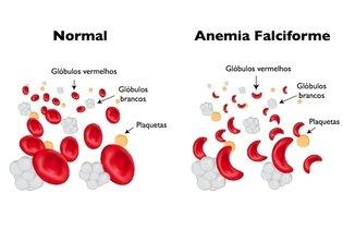 Entenda as causas e saiba como controlar a Anemia Falciforme