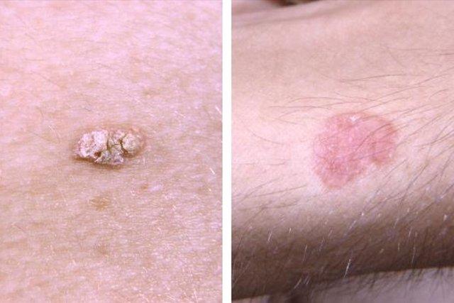 Tratamento para câncer de pele