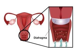 Como usar o Diafragma para evitar a Gravidez