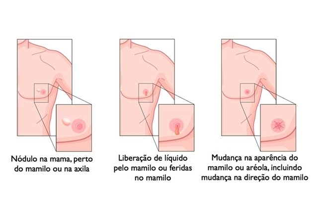 12 sintomas do câncer de mama