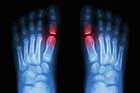 4. Artrite ou artrose