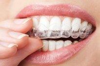 Colocação da moldeira na boca