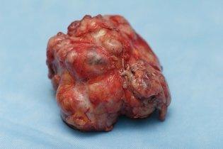 Fibroadenoma da mama retirado por cirurgia