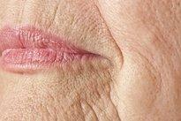 Flacidez da pele