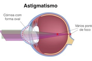 Forma da córnea no astigmatismo