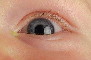 Secreção amarelada no olho do bebê
