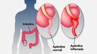 How to identify an appendicitis and its symptoms