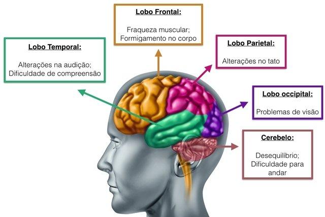 Principais sintomas de acordo com a localização do tumor cerebral