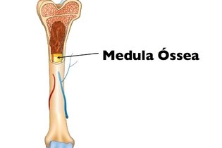 Para que serve e como é feita a biópsia da medula
