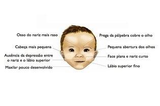 Rosto de um bebê com síndrome alcoólica fetal