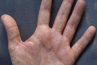 Como acabar com a coceira intensa nas mãos ou pés