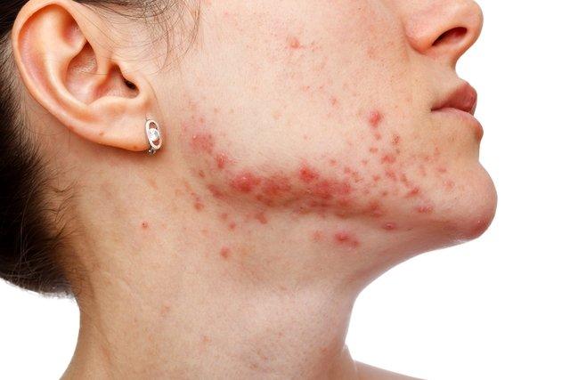 Como livrar-se de uma inflamação e lugares na cara