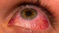 Conjuntivitis viral: síntomas, cómo se contagia y tratamiento