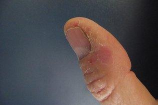 Dermatite de Contato Irritante