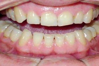Desgaste da superfície dos dentes