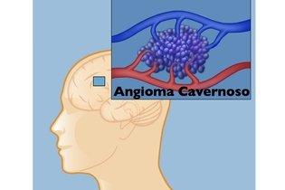 Angioma Cavernoso no cérebro