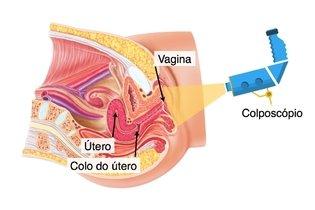 Como é feita a colposcopia