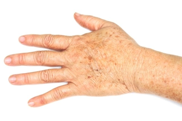 Como identificar e tratar as manchas na pele