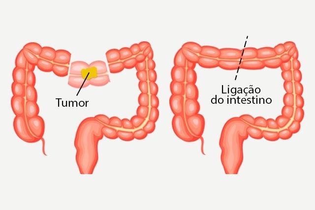 Como é feita a cirurgia para câncer de intestino