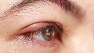 O que é blefarite (pálpebra inchada) e como tratar