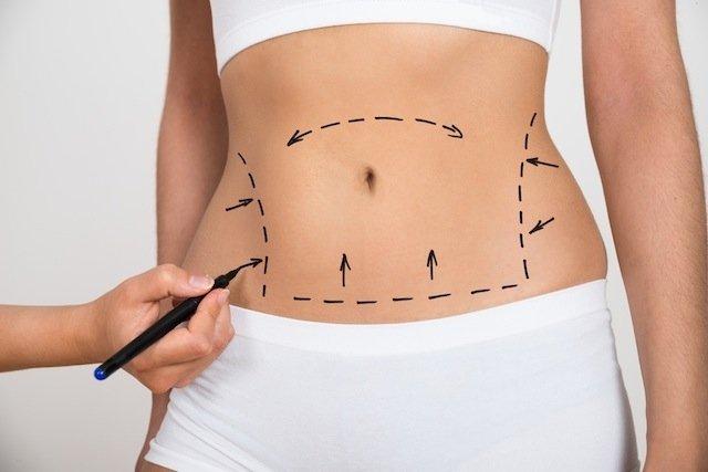 Delinear regiões com excesso de gordura