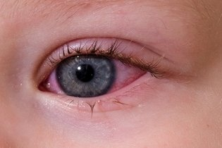 Olho do bebê vermelho e lacrimejando