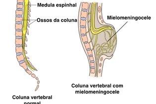 Entenda o que é, causas e tratamento para Mielomeningocele