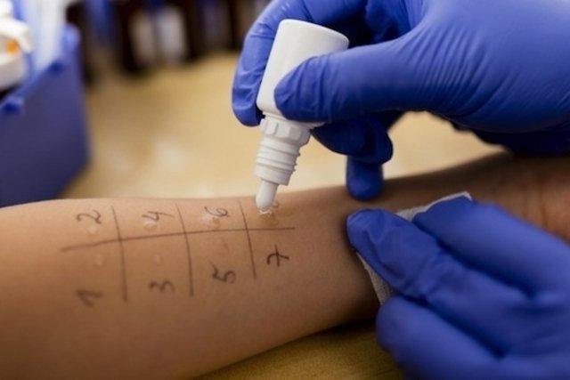 Teste de alergia na pele