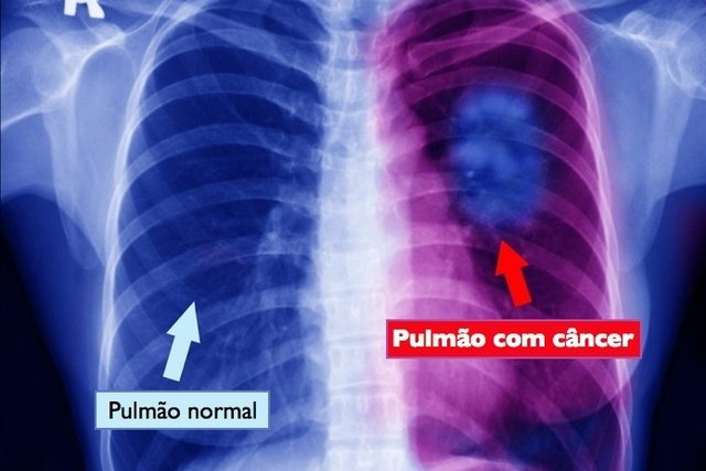 Raio-x evdenciando o câncer no pulmão direito
