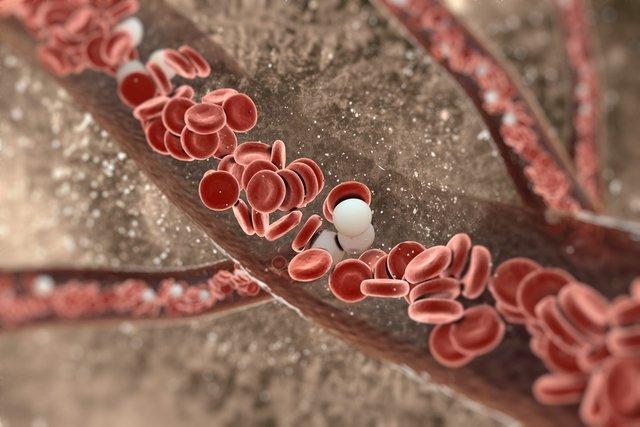 uterine varicoză ceea ce este