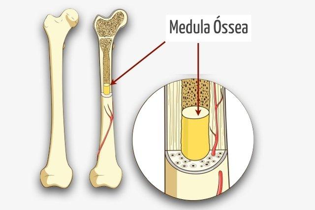 Quem pode doar medula óssea