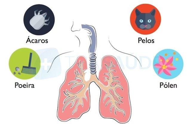 Contato com substâncias alérgenas pode desencadear Asma