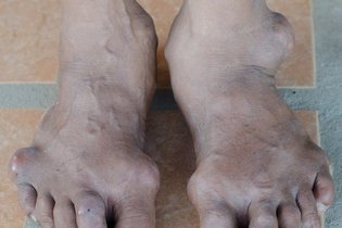 Gout on the big toe and ankle