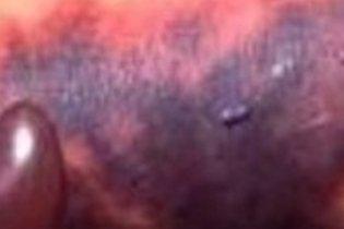 Manchas roxas e bolhas de sangue na pele